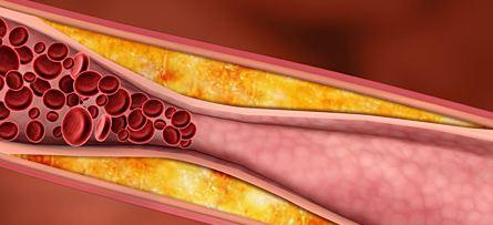 cholesterol-plaque-vaisseau