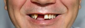 Les dents soignées par un médicament contre Alzheimer